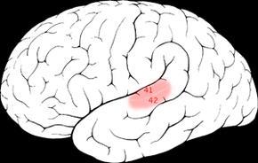 brain aud cortex
