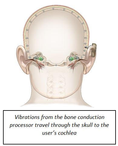 What is the difference between a conduction hearing loss and nerve deafness