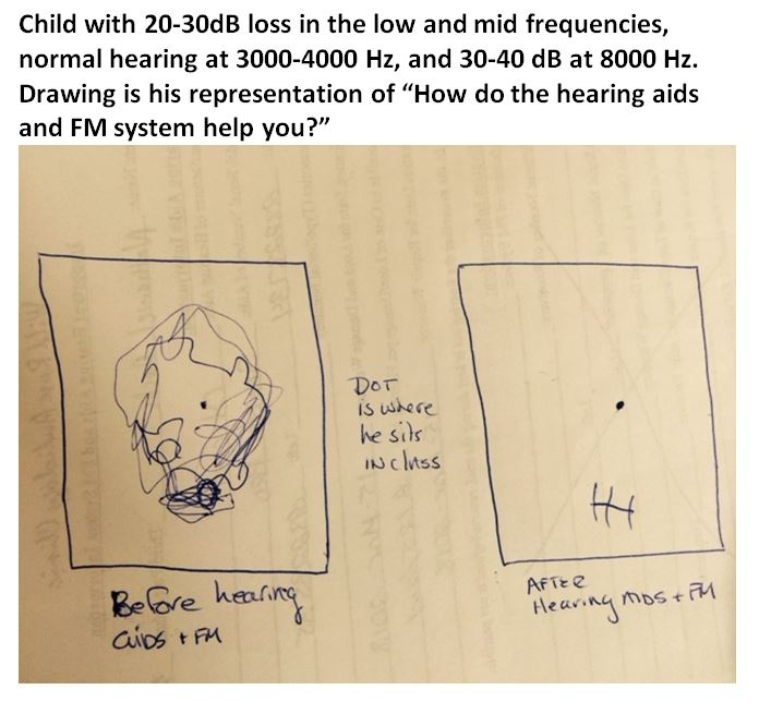 child's drawing of HA-FM use